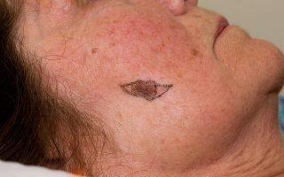 Причины меланомы на лице