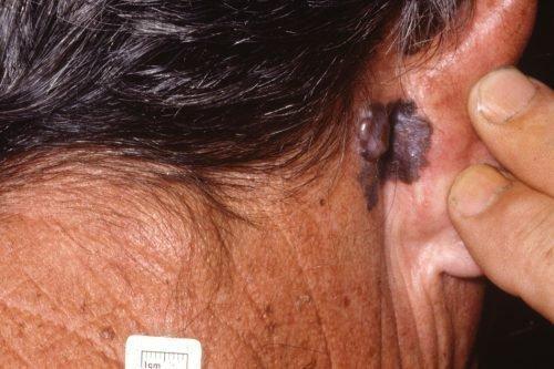 Меланома на шее