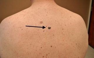 Симптомы меланомы кожи спины