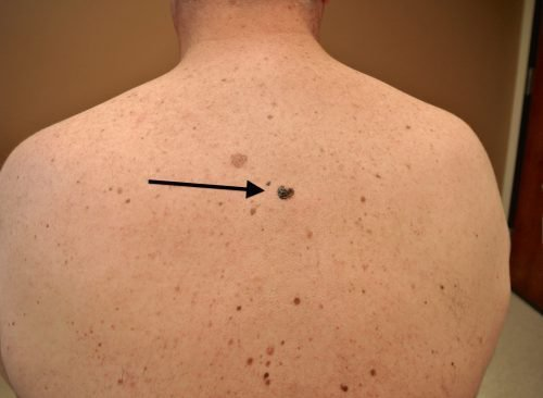 Меланома кожи спины у мужчин, состояние после иссечения опухоли