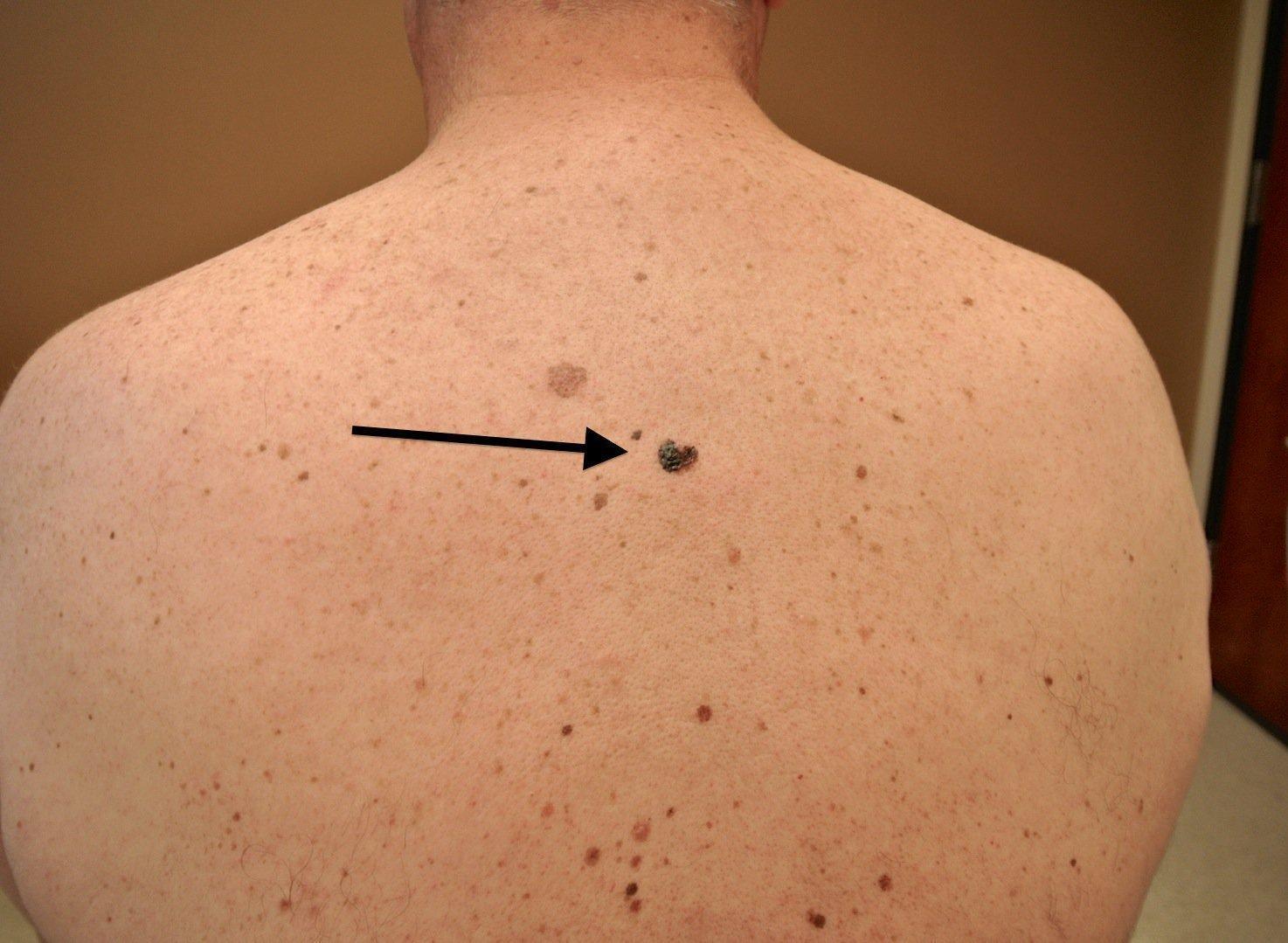 Рак кожи - причины, признаки и симптомы, лечение