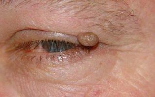 Чем вызвано появление папиллом на глазах и как их лечить?