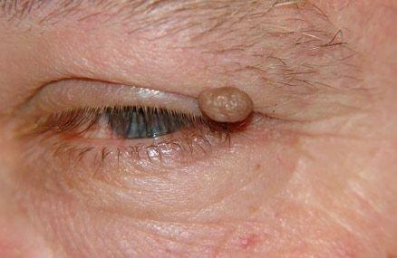 Папиллома на глазу: причины, лечение, как удалить в домашних условиях