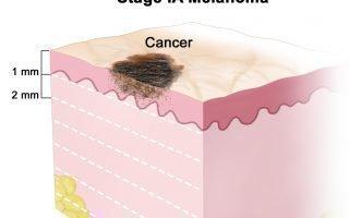 Проявление меланомы начальной стадии