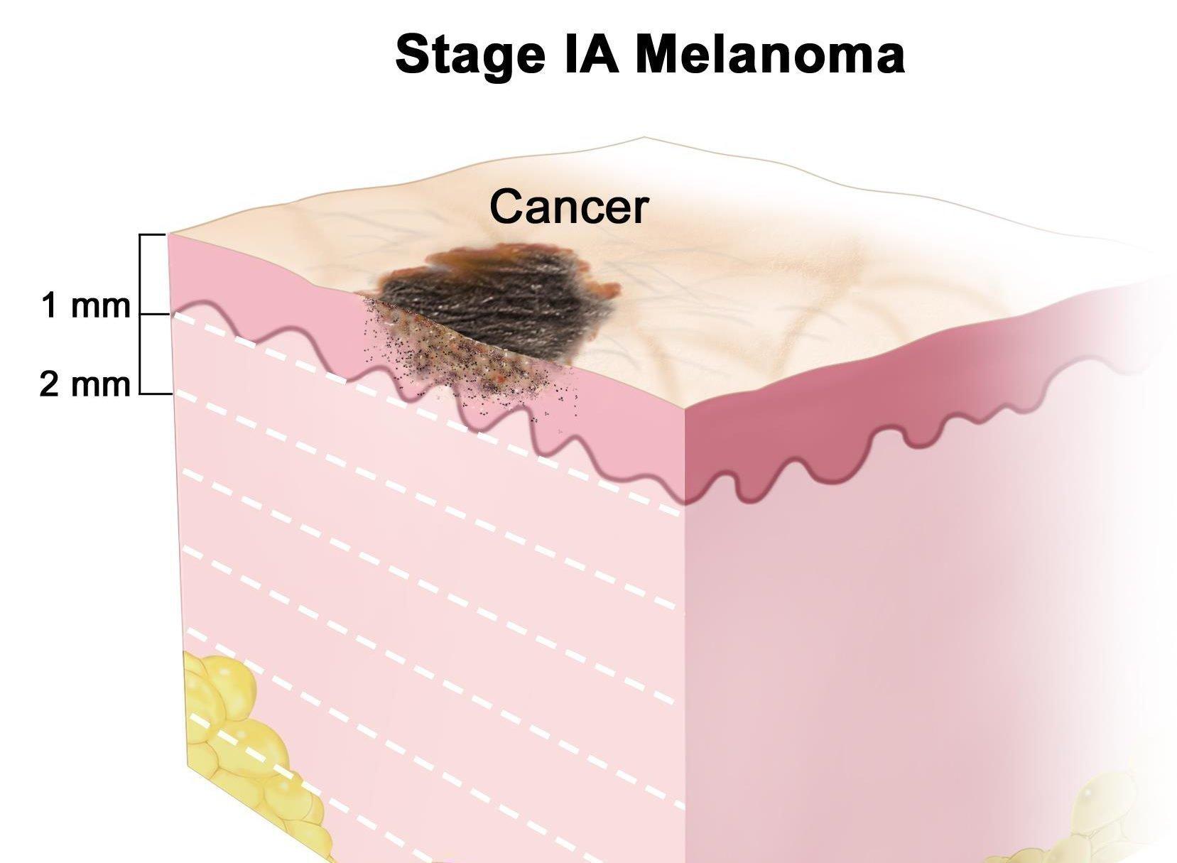 Меланома: ФОТО начальная стадия. Фото меланом