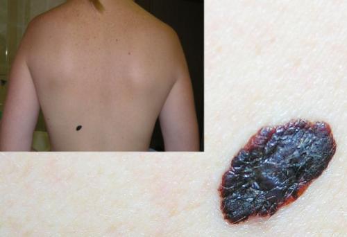 Поверхностно – распространяющаяся меланома