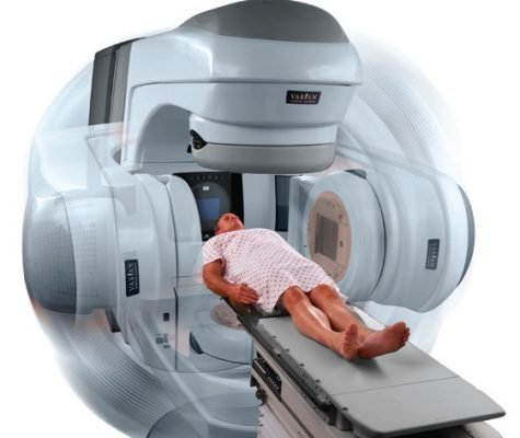 Рентгенотерапию