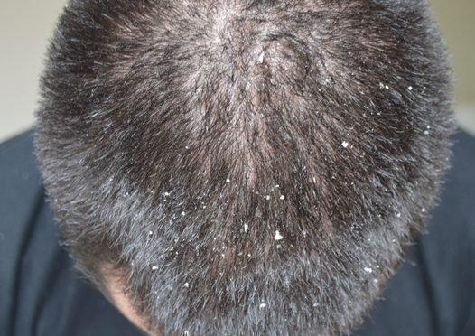 Шампунь для лечения кожи головы