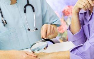 Симптомы появления меланомы
