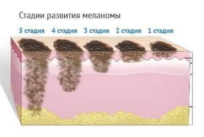 Стадии меланомы