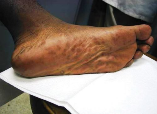 Темнокожая нога