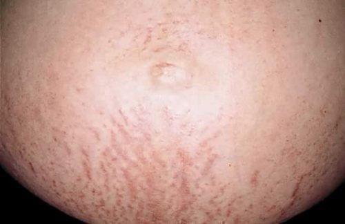 Токсический дерматоз