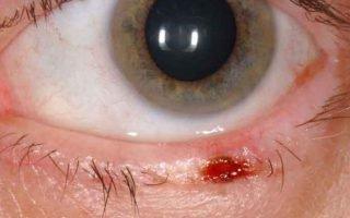 Что такое базалиома глаза (века), характеристики недуга