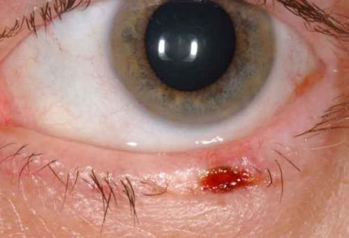Базалиома глаза