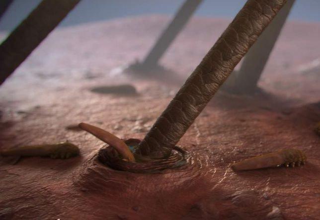 Как вылечить демодекоз кожи головы: шампунь стоп демодекс и другие средства
