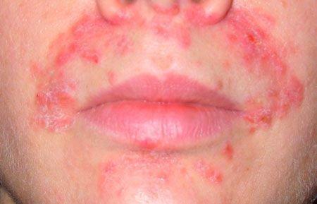 Дерматит вокруг рта