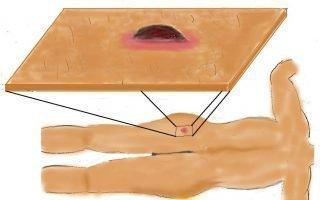 Чирей (фурункул) на попе: причины появления и способы лечения