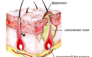Каковы причины заболевания фурункулезом