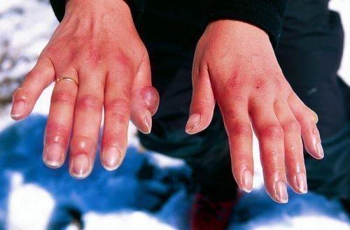 Холодовый дерматит