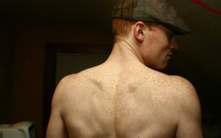 Причины появления веснушек на спине
