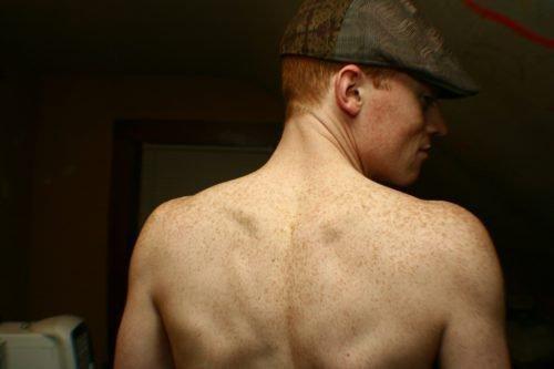 Веснушки на спине
