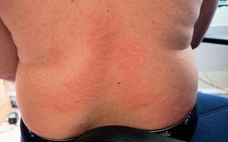 Причины уртикарной сыпи