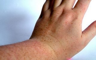 Природа веснушек расположенных на ногах и руках