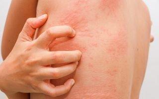 Симптомы хронической крапивницы