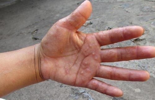 Дерматит заразен или нет: передаётся ли в семье, передача по наследству