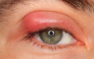 Как вылечить фурункулы на глазах