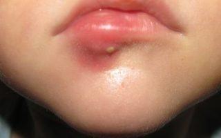 Как лечить фурункулы на губах