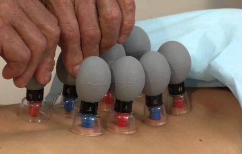 Градиентная вакуумная терапия
