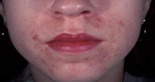 Клещевой дерматит на лице