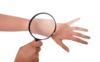 Лечение контактного дерматита на коже рук