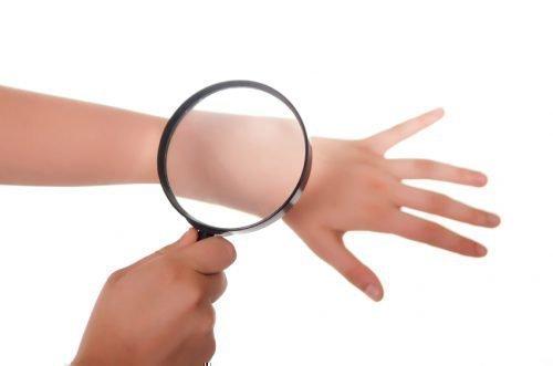Лечение контактного дерматита на руках