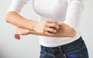 Лечение пруриго (почесухи) у взрослых