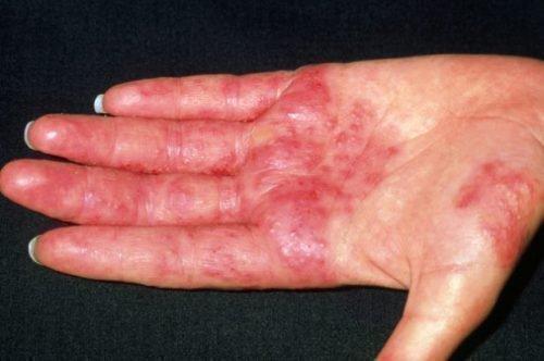 Рука с дерматитом