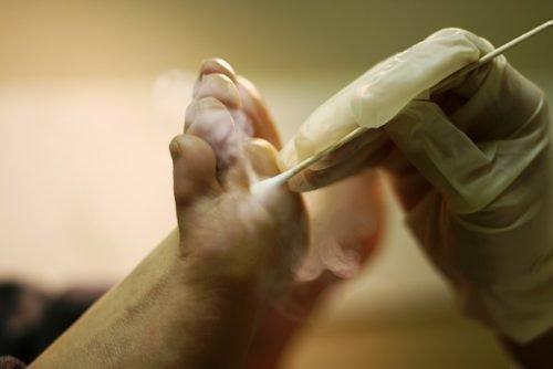Криотерапия мозоль