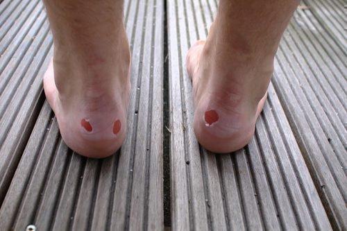 Мозоль на пятке: как быстро вылечить, что делать, если больно ходить