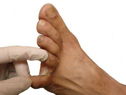 Мозоли между пальцами