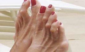 Методы лечения мозолей на пальцах ног