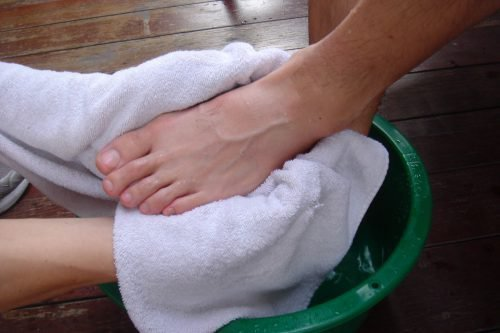 Как избавиться от мозолей на ногах в домашних условиях народными способами