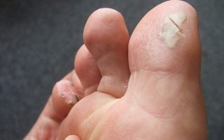 Натоптыши (сухие мозоли) на ногах: причины и методы лечения