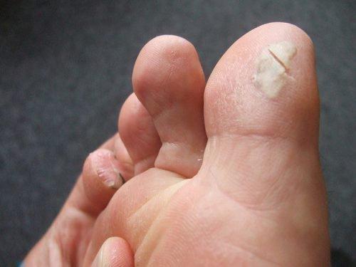 Натоптыши на ногах: причины появления, как избавиться, можно ли срезать