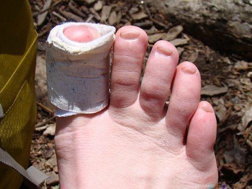 Палец с пластырем