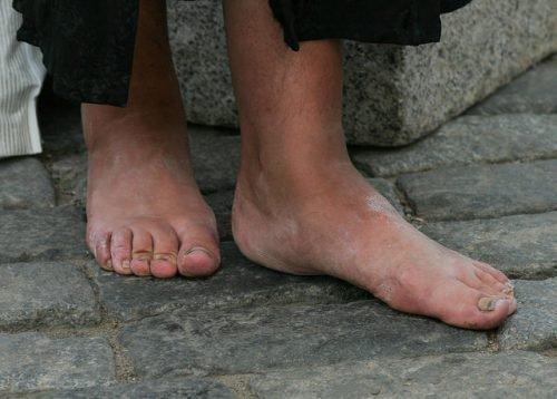 Как убрать натоптыши на ступнях со стержнем, мозоль на стопе