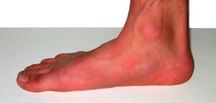 Как убрать натоптыши на ногах в домашних условиях: аптечные препараты