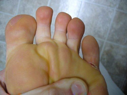 Трещины между пальцами