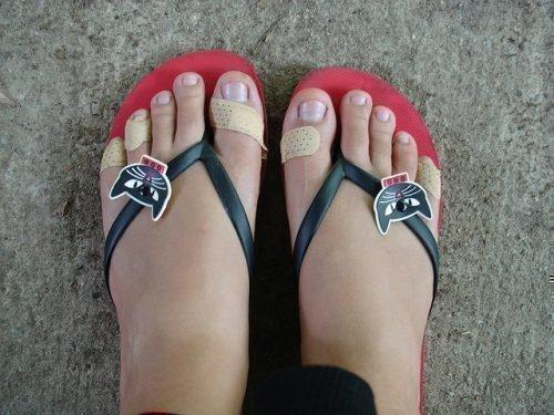 Ноги в натоптышах