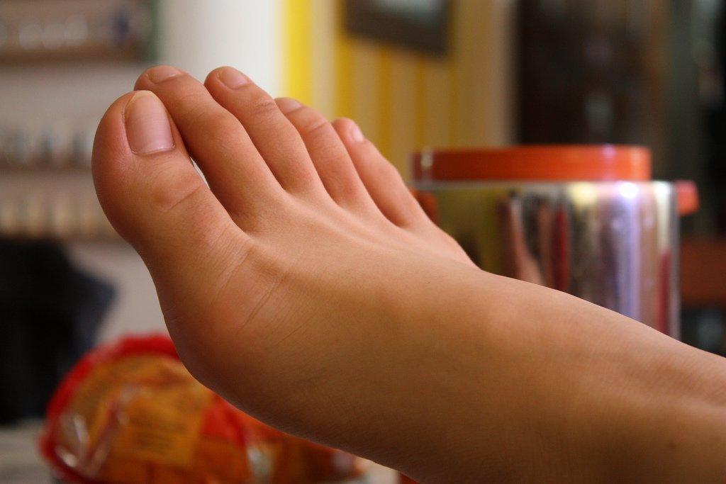 Сухая мозоль на мизинце ноги – лечение. Как убрать сухую мозоль на мизинце